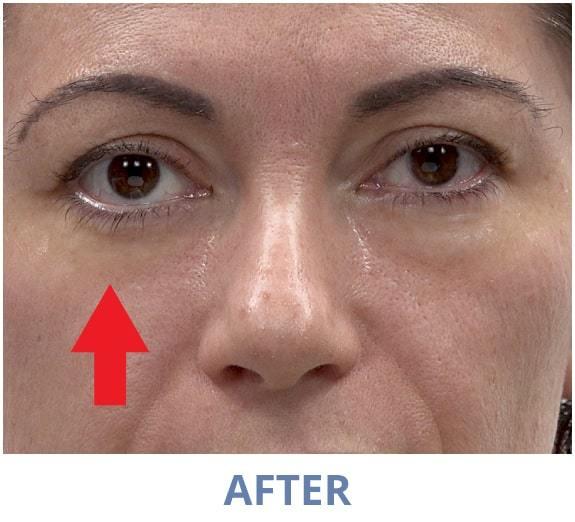 Rita After applying Rapid Reduction Serum