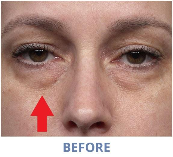 Jacqueline before applying Rapid Reduction Serum
