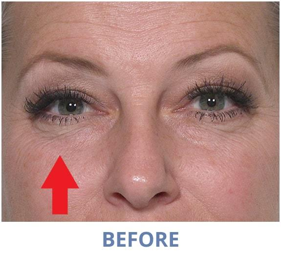 Tiffany before applying Rapid Reduction Serum