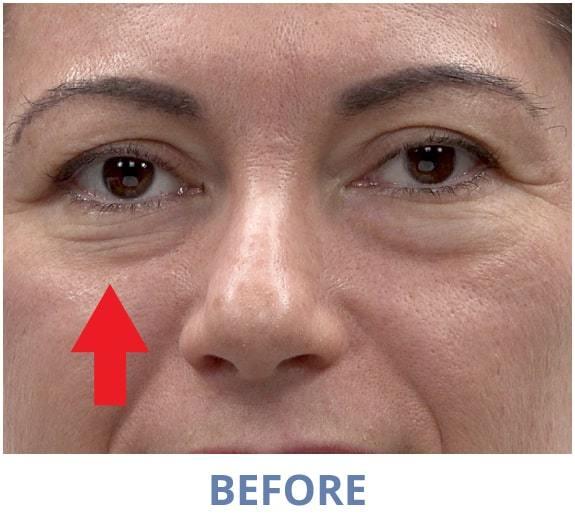 Rita Before applying Rapid Reduction Serum