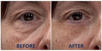 Neila's under-eye bags and wrinkles visibly disappeared in less than 10 minutes.