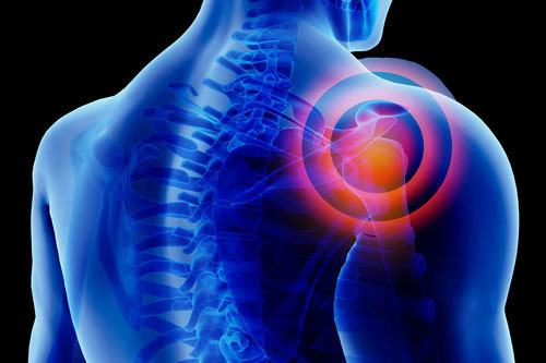 Shoulder radiating with pain