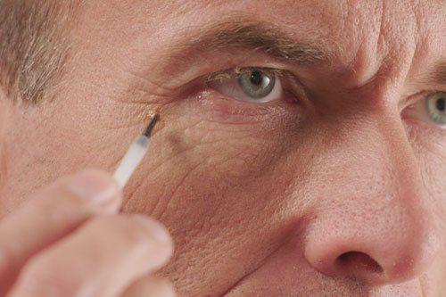 Man applying Hempvana End Tag on skin tag near eye