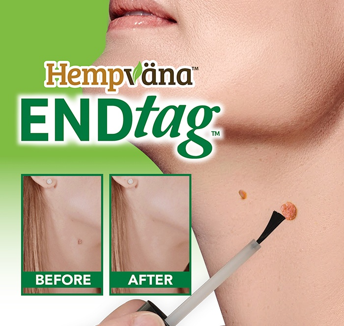 Hempvana End Tag; close up of End Tag being brushed onto skin tag on neck; before and after of skin tag on woman's neck