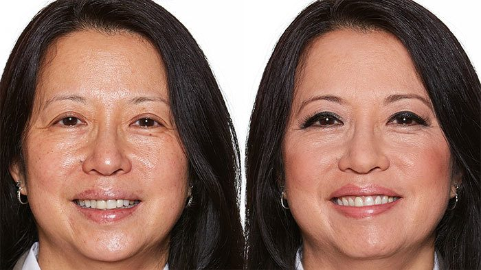 Before and After Image of Older Brunette Woman