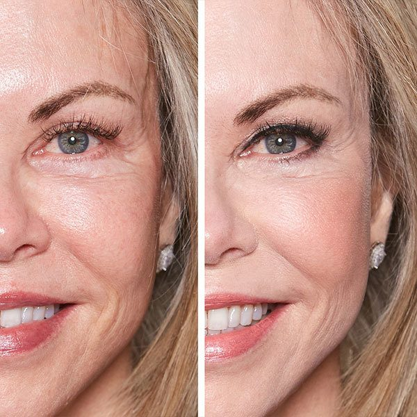 Before and After of Older Woman with Blonde Hair