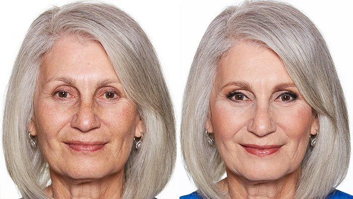 Before and After of Older Woman with Grey Hair