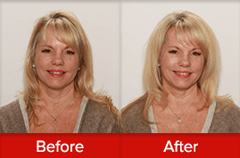 Before and after image of blonde lady with huge hair volume after using the VOLOOM volumizing iron