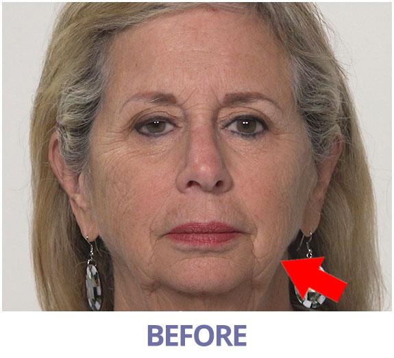 Ellen before applying Rapid Reduction Serum