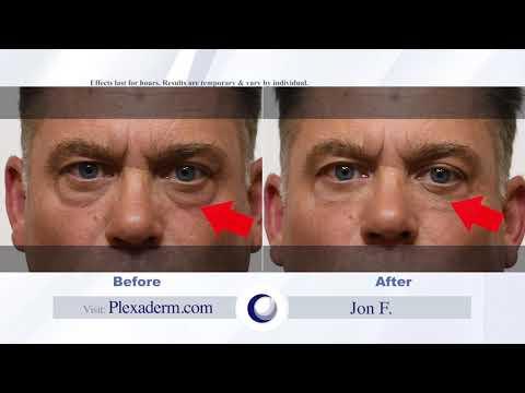 Jon Testimonial how plexaderm has taken years off jon's appearance