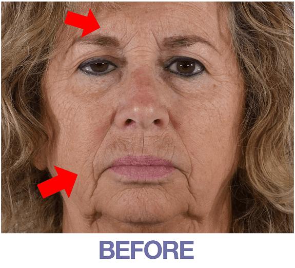 Ellen before applying Rapid Reduction Cream