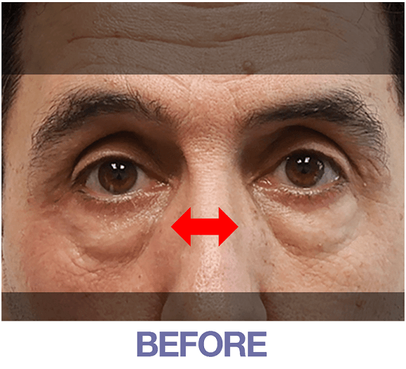 Ritchie before applying Rapid Reduction Cream