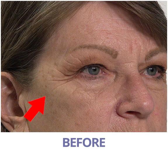 Janice before applying Rapid Reduction Serum