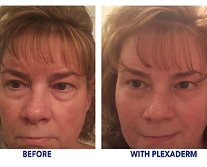 Cindy saw great results with Plexaderm