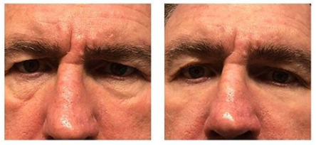 Gary used Plexaderm and saw the transformation in minutes