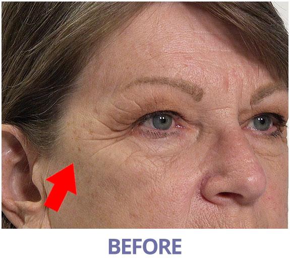 Mona before applying Rapid Reduction Serum