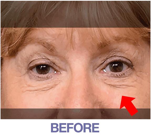 Janice before applying Rapid Reduction Cream