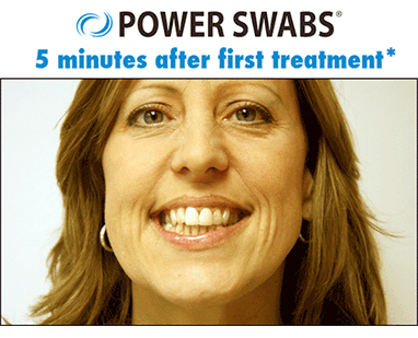 her results 5 minutes after first treatment