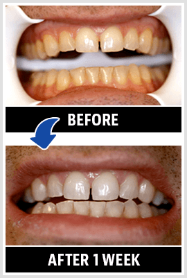Compare these before and after pictures