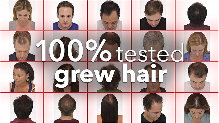 Home The Igrow 174 Hair Growth System