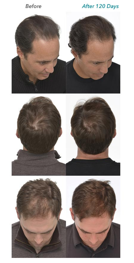 low t and hair loss