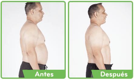 observadores de peso antes después de las fotos