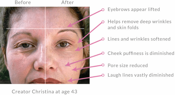 How It Works The Official Site Of Dermawand Us